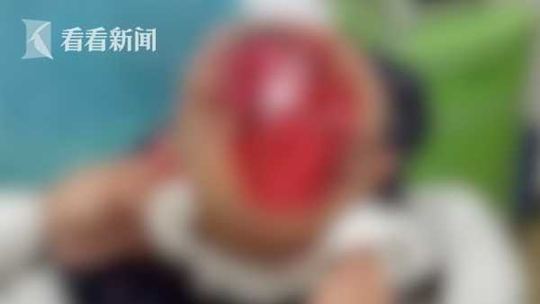 视频 75岁老太误入工地被4只恶犬围咬 头皮大面积撕裂