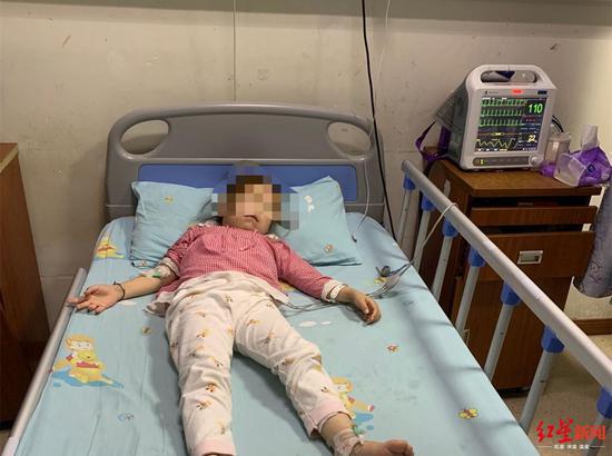 7岁女孩患慢性肾衰竭靠透析维持生命 家里还有双胞胎妹妹