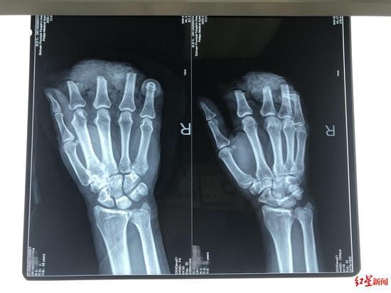 4指被切断 医生用0.1毫米线缝合血管
