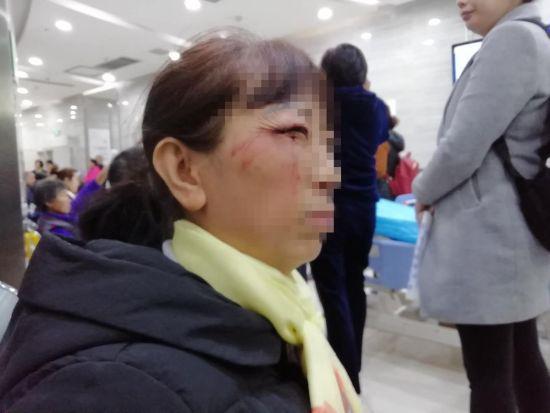 练女士右眼角受伤