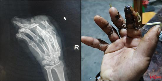 市民工作时受伤造成手指离断反成被告:咋就成了没有劳动关系