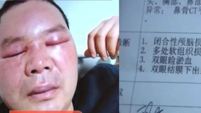 男子举报排污被打伤追踪:打人者被刑拘 企业被查封