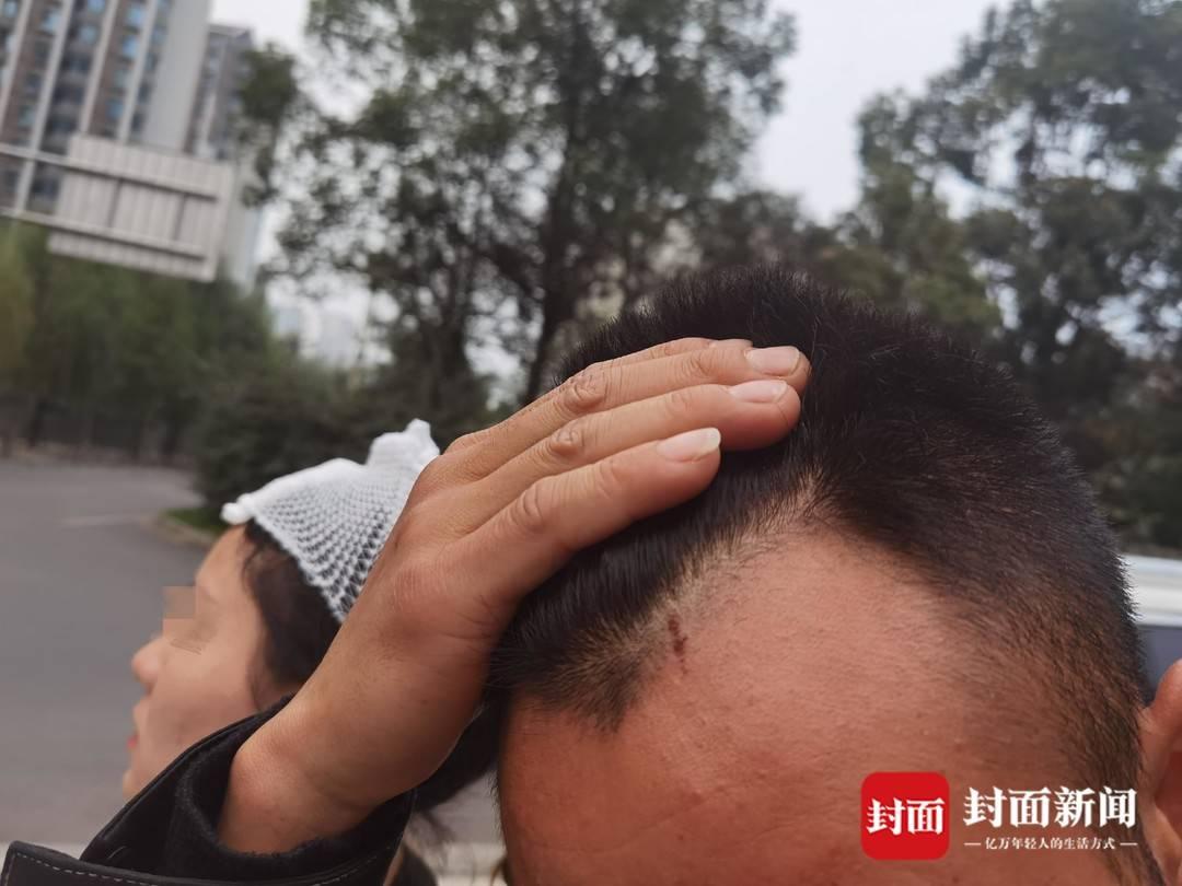 陈女士老公头部被划伤,身后的陈女士头部进行了缝针包扎
