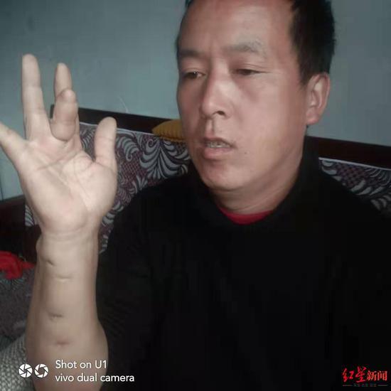 王永学丈夫手有残疾
