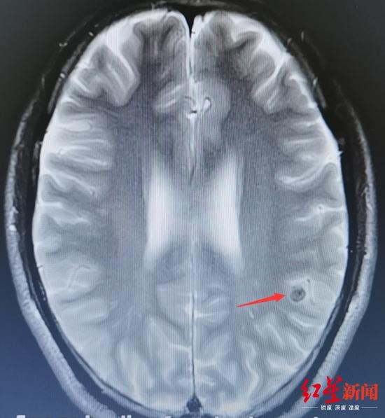 ↑箭头所指处为谭大哥脑内病灶。