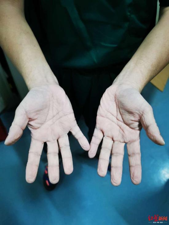 全身湿透双手惨白 男护士抗疫图片令人动容
