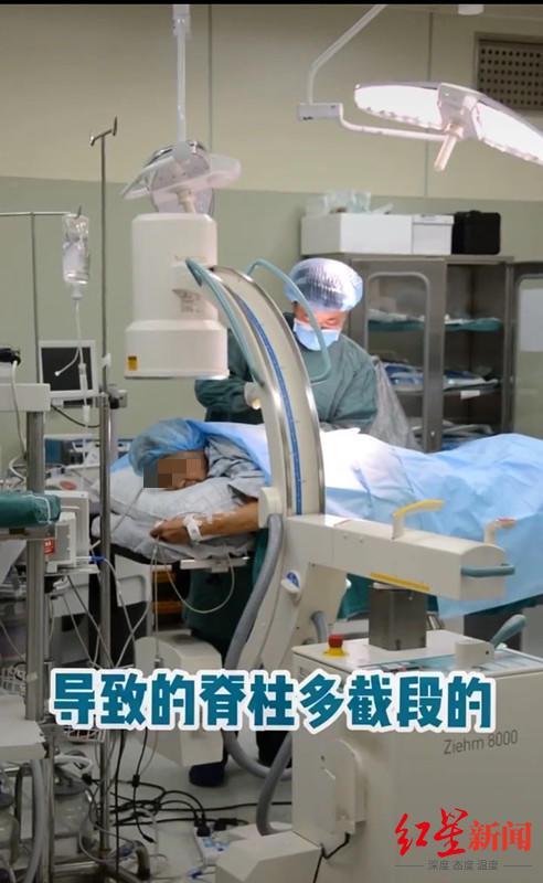 ↑医生在给婆婆做手术