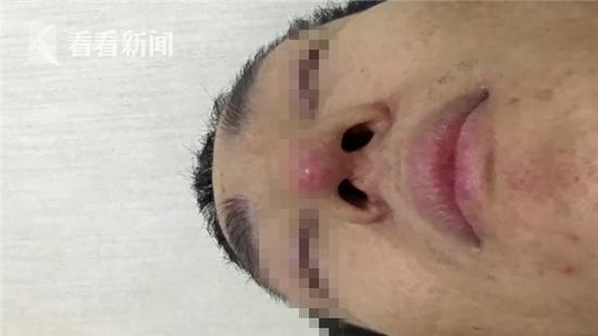 视频 5年整容23次 成都爱美男子隆鼻后遭毁容