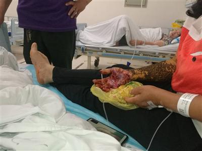 瀘州村民被原矛頭蝮蛇咬傷 從成都到瀘州緊急送藥