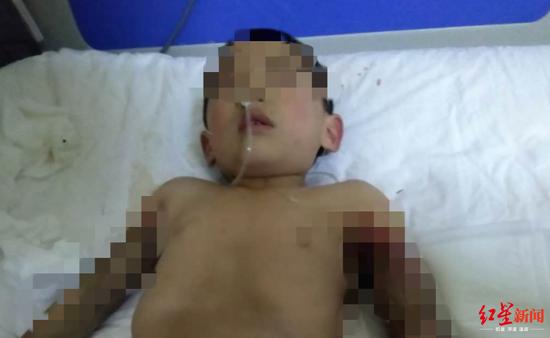 四川4岁留守男孩玩耍时遭电击伤 双臂被截肢