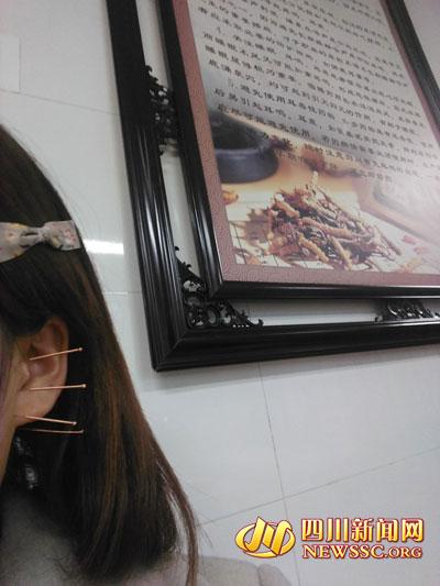 针灸治疗耳部