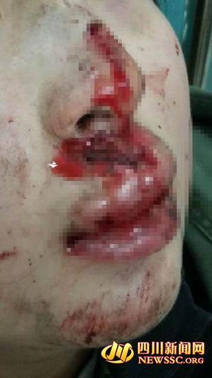 受伤的马瑜彬。