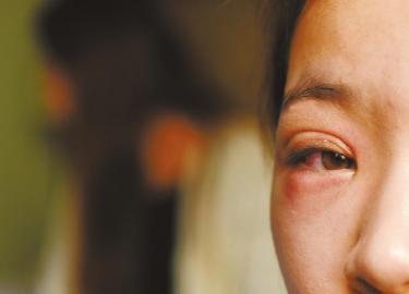 毛毛的一只眼睛受伤红肿。