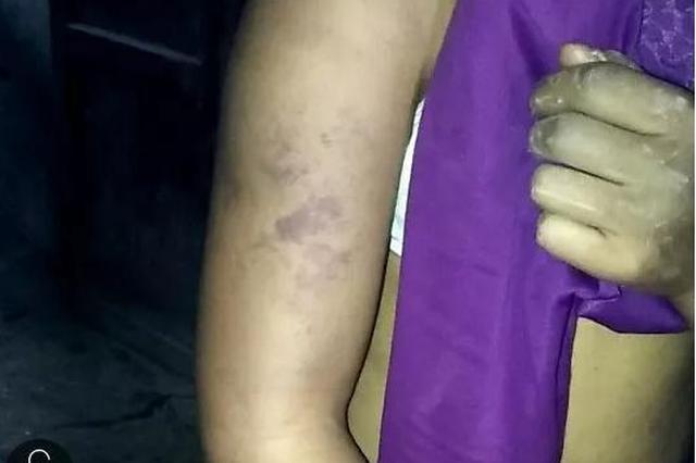 达州宣汉女子疑似暴力殴打3子女 政府回应正在调查