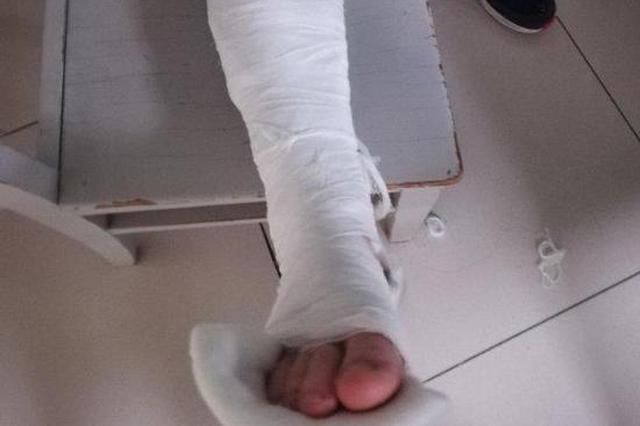 老外通过人行横道与私家车擦身而过 结果发现脚趾骨折了