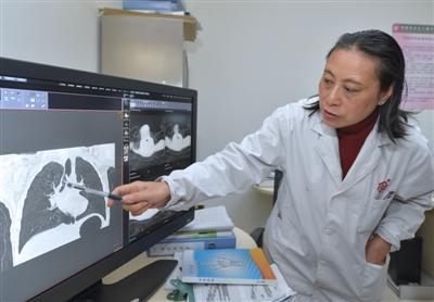 成都市妇女儿童中心医院耳鼻喉科主任医师徐幼在分析病情