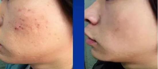 痤疮疤痕是怎么形成的?能否治疗?专家告诉你