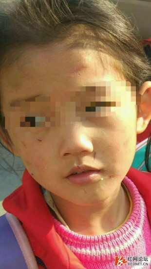 6岁女孩疑遭生母虐打 警方:其母涉虐待罪已被刑拘