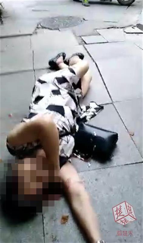 路面地砖凸起,七旬太婆被绊倒摔成骨折