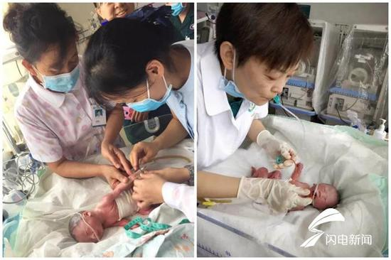 经过一系列的紧急接力救治,终于,母子平安!