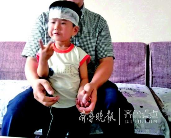就医及时,孩子的伤口得到很好的处理,现在已无大碍。 屈先生供图