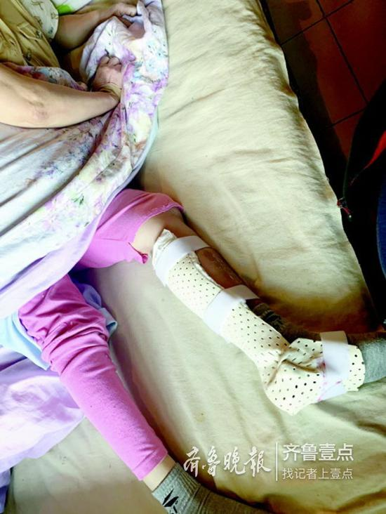 旅游摔断腿后,赵刚的妻子只能躺在床上休息。