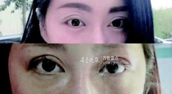 解女士提供的今年1月双眼皮重睑修复术前后对比图。受访者供图