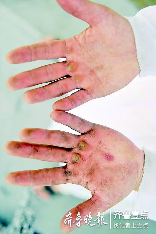 崔明凯布满老茧的双手。