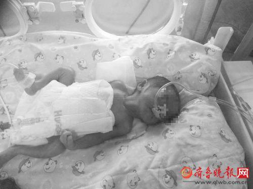 在保温箱里,由于体重太轻,两个宝宝看上去特别瘦弱,小腿只有成人手指般粗细。