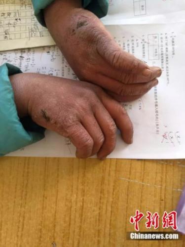 """""""冰花""""男孩冻红的双手。来源:转山包小学校长 付恒 供图"""