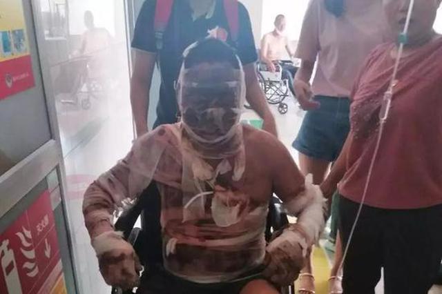 淄博一男子做饭时被严重烧伤 家人用偏方治疗差点害了他