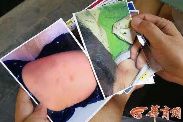 幼儿园老师背摔幼儿致其多处淤青 警方确认却拒赔