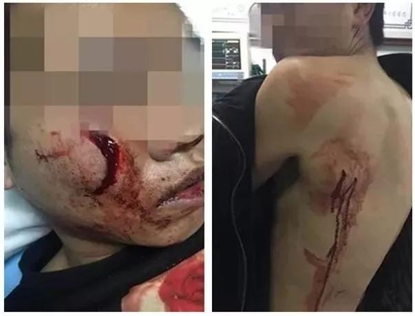 打架成本公布 烟台两个人相互瞅了一眼1人刑拘2人住院