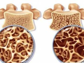 国内50岁以上女性骨质疏松患病率32.1% 远高于同龄男性