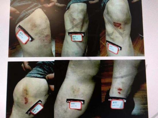 民警受伤照片。上海市普陀区人民检察院供图