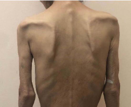 19歲女孩小玉,身高1米68,體重卻連60斤都不到。本文圖片均由 上海市第十人民醫院 供圖