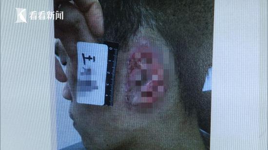 而马某的这一咬,酿成了不可挽回的后果,同事王某的整个耳朵被撕了下来。(看看新闻Knews记者:宣克炅 编辑:余寒静)