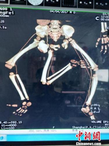 特殊的新疆男婴小飞身上长着臀部寄生胎,长有三条腿,并伴有泌尿系统、消化系统等多器官异常。 严晓慧 摄