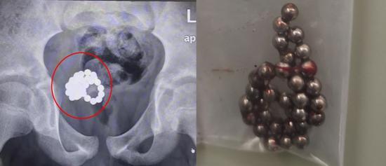 两名11岁男童将磁力珠塞尿道 专家:儿童两性教育待加强