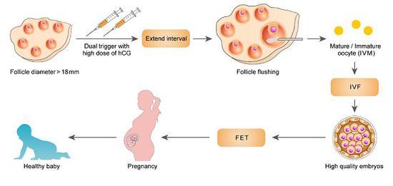图说:LHCGR基因突变不孕女性患者采取的特殊IVF-ET策略治疗流程 来源/第九人民医院提供