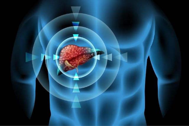 肝癌诊断治疗预防呈现新亮点 原发性肝癌诊疗规范在沪发布