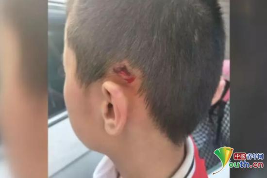 男孩耳朵上方被磕破。 视频截图