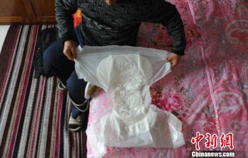 因为尿管会漏,申建军(化名)需要时常带着大号成人纸尿裤. 胡健 摄