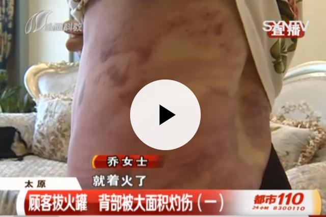 视频丨顾客拔火罐背部大面积灼伤 说好的理赔遭变卦
