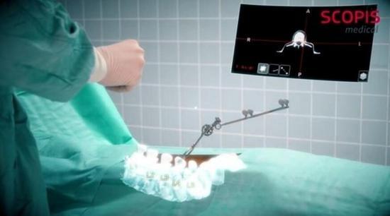 <b>武汉协和医院实施了世界首例MR技术下的髋部骨折手术</b>