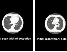 谷歌AI诊断在肺癌检测方面优于放射科医生
