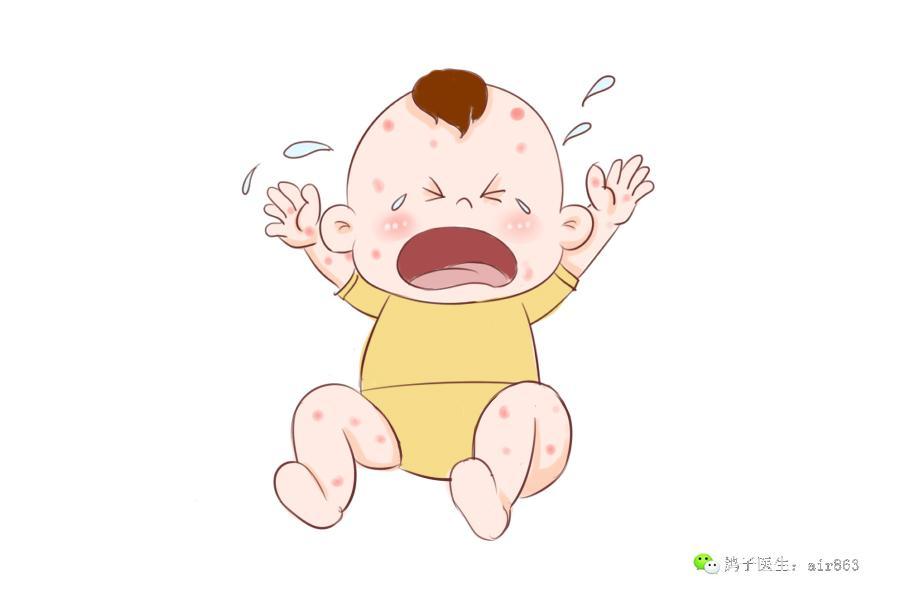 夏季由于温度较高,容易出汗,而且空气也比较湿润,是宝宝湿疹的高发季,宝宝的尿布区域经常会出现红肿、红色小颗粒,宝宝还容易哭闹、有烦躁情绪。妈妈护理起来,难度增大。    湿疹常发于婴幼儿身上,多见于面颊、额头、两耳根、四肢、臀部、私处等位置,初发时,通常表现为发散或者集中区域性的小丘疹或者红斑,如果没有及时处理,还会逐渐增多,并可见小水泡、黄白色鳞屑及痂皮,后期会有白色粘液渗出,挠抓就容易出现糜烂及继发性感染。但是好在湿疹病发在表皮,愈合后一般不会留下疤痕。   容易患湿疹的孩子皮肤本就比较敏感,夏季
