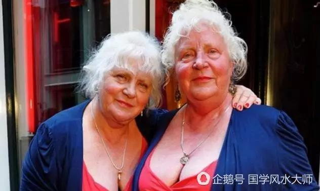 全球最奇怪的双胞胎,最悲催的一辈子竟都看不到对方