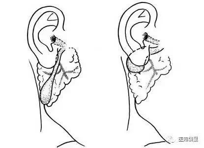 婴儿耳朵内部结构