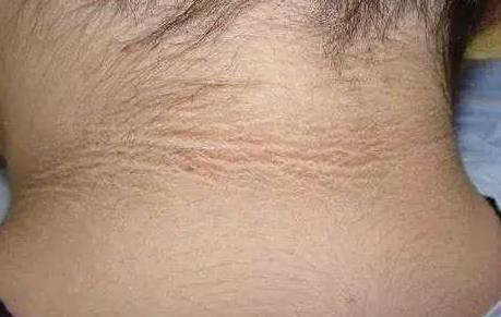 这些皮肤病要警惕, 它们在暗示你体内有肿瘤!